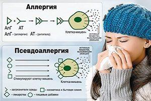 Аллергия и псевдоаллергия