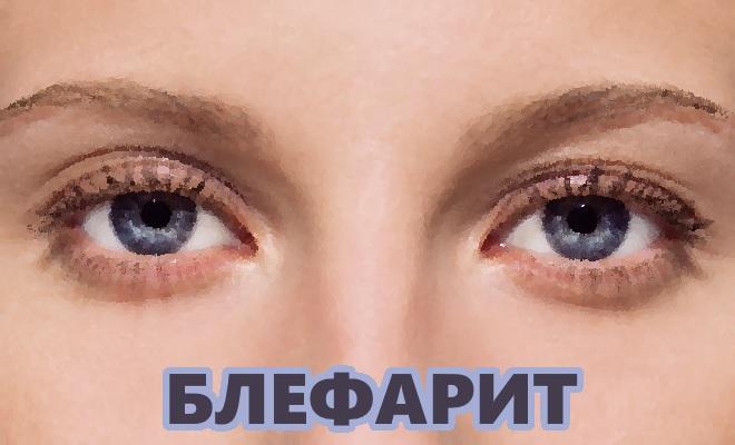 Блефарит