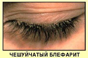 Чешуйчатый блефарит