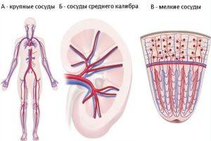 Поражение разных сосудов при васкулите