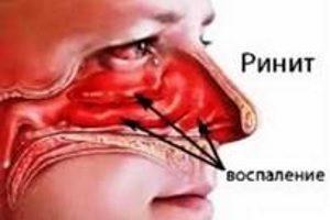 Заболевания носа
