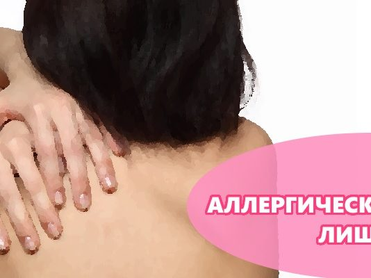 Аллергический лишай
