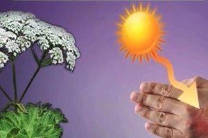 Ожоги при воздействии ультрафиолета