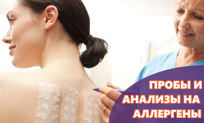 Пробы и анализы на аллергены