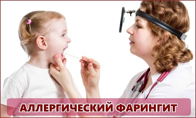 Аллергический фарингит