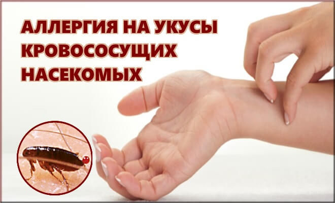 Аллергия на укусы кровососущих насекомых