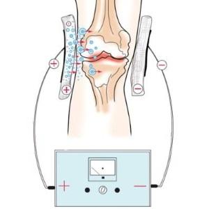 Физиотерапия сустава