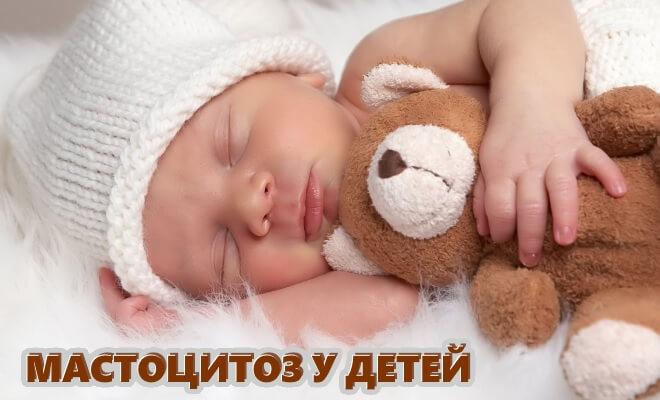 Мастоцитоз у детей