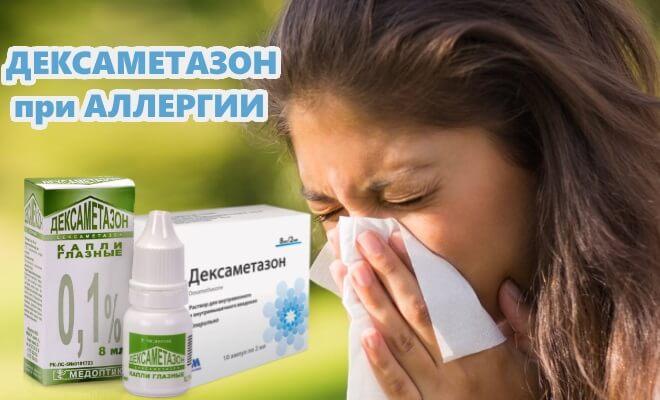 Дексаметазон при аллергии