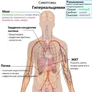 Гиперкальцимия - симптомы