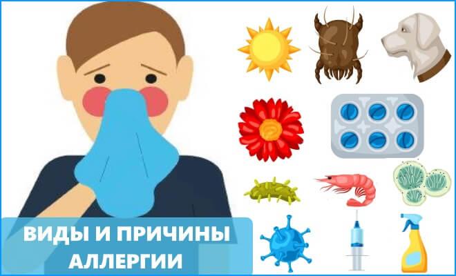 Виды и причины аллергии