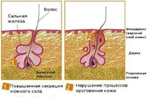 Нарушение секреции