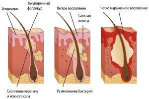 Стадии воспаления сальных желез