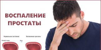 Воспаление простаты