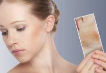 Пересадка бактерий при атопическом дерматите
